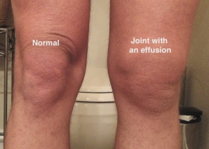 Swelling After Knee Surgery San Diego Orthopedic Surgeon And Sports Medicine Physician Scott Hacker Md